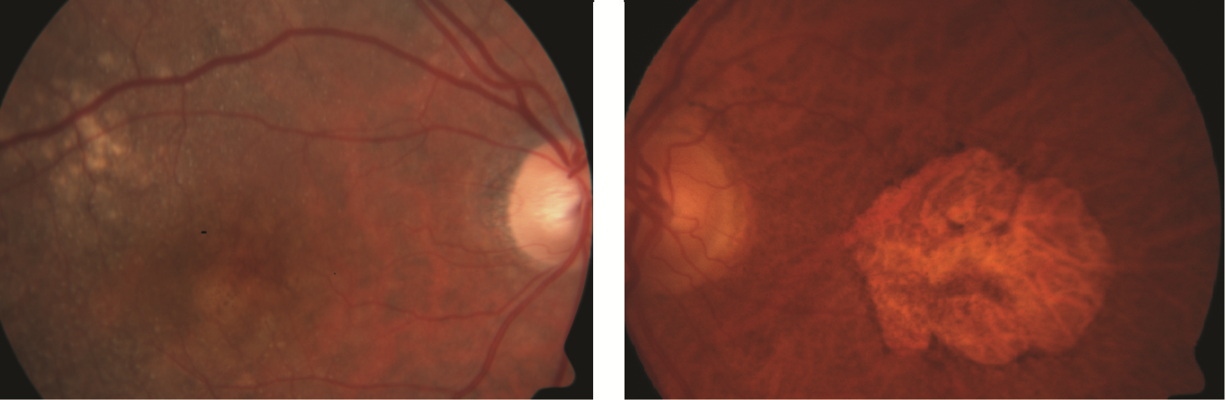 Figure 1. Dry AMD. A. Drusen (indicated by arrow). B. Geographic atrophy Photo courtesy Anat Loewenstein, MD