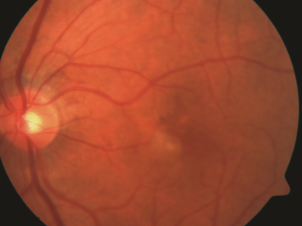 Figure 2. Wet AMD. Choroidal neovascularization (indicated by arrow). Photo courtesy Anat Loewenstein, MD