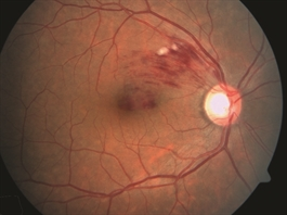 Figure 1. Branch retinal vein occlusion: Retinal hemorrhage in only a sector of the retina is seen. Cotton-wool spots (white lesions amid the hemorrhages) signify focal ischemia (inadequate blood supply). Foveal edema (swelling with fluid) is also present. Photo courtesy Anat Loewenstein, MD
