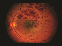 Figure 2. BRVO with macular edema. David Callanan, MD, Texas Retina Associates. BRVO/CHRPE. Retina Image Bank 2014; Image 15926. © American Society of Retina Specialists.