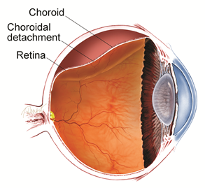 Choroidal Detachment Diagram