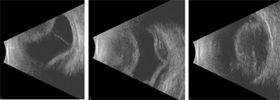 Figure 1. An echographic (ultrasound) image of the eye shows a choroidal detachment. Your retina specialist can use these images to differentiate a choroidal detachment from a retinal detachment, characterize the size and type of the choroidal detachment (ie serous, hemorrhagic, or mixed), and monitor changes over time.
