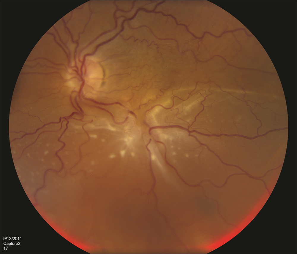 "Figure 1. A patient with complex retinal detachment due to PVR in the left eye. A retinal ""star fold"" is present in the inferior macular with associated subretinal fluid. (Photo courtesy Carl Regillo, MD)"