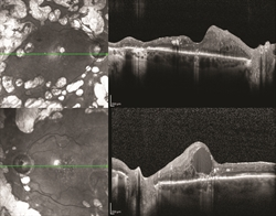 Figure 1. OCT of a patient with bilateral proliferative diabetic retinopathy with diabetic macular edema in the left eye. ©ASRS Retina Image Bank, May 2016. Image 26525. Olivia Rainey, Retina Specialists of Michigan.