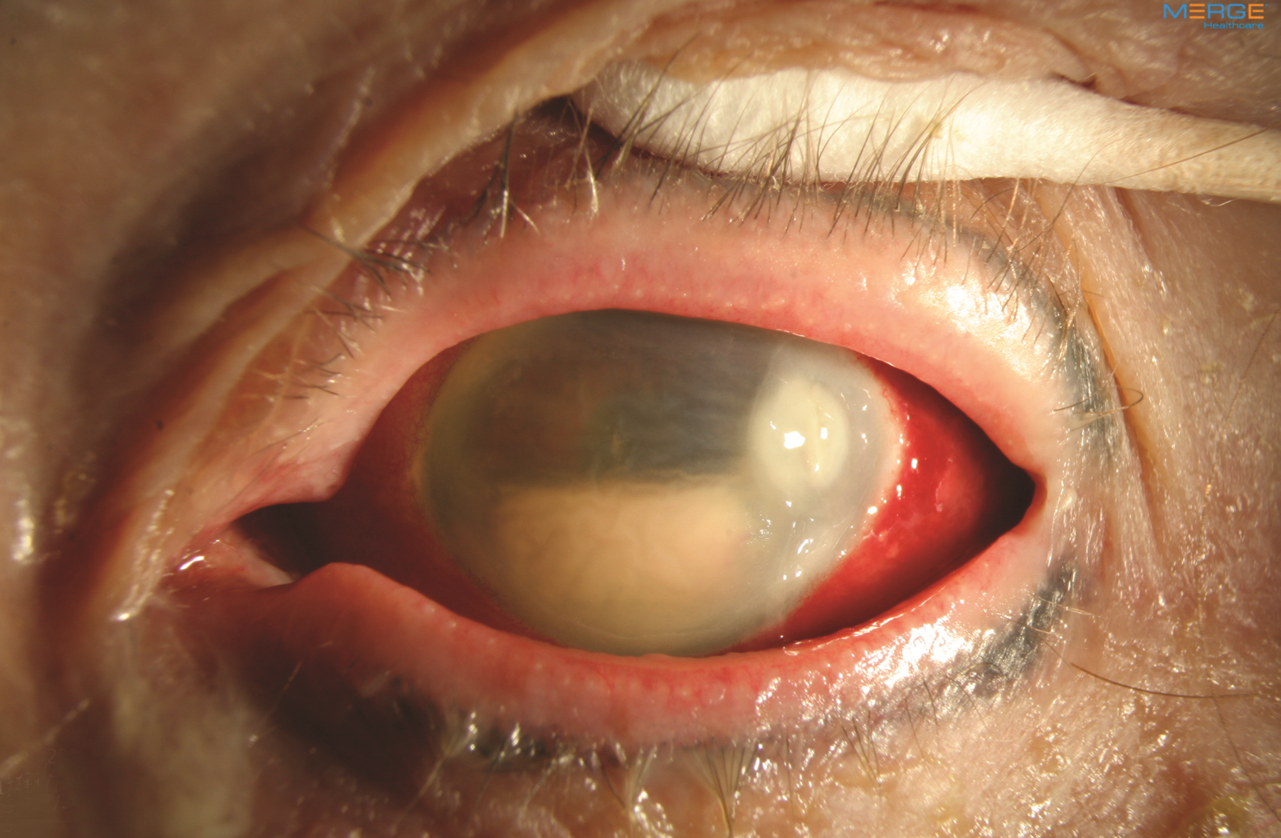Figure 1. Hypopyon is an accumulation of white blood cells in the anterior chamber of the eye and corneal infiltrate associated with infectious endophthalmitis. Image courtesy of ©Retina Image Bank, contributed by Aleksandra V. Rachitskay, MD, Cole Eye Institute, Cleveland Clinic. 2014. Image 16250.