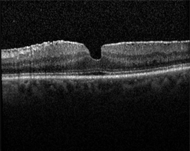Figure 1. Epiretinal Membrane (OCT) John Pollack, MD, Rush University Medical Center. Retina Image Bank, 2012; Image 181. ©American Society of Retina Specialists