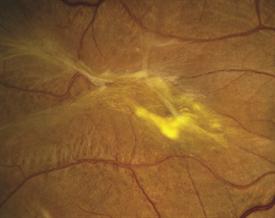 Figure 2. Epiretinal Membrane Sharon Fekrat, MD, FACS, Duke University Eye Center. Retina Image Bank 2012; Image 1437. ©American Society of Retina Specialists