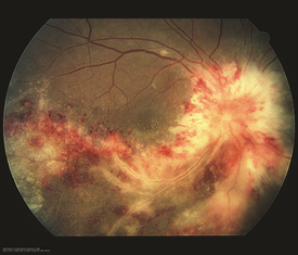Figure 2. This image was originally published in the ASRS Retina Image Bank. Henry J. Kaplan, MD, University of Louisville. MV Retinitis in a Patient with the Diagnosis of AIDS. Retina Image Bank 2013; Image 4985 © the American Society of Retina Specialists.