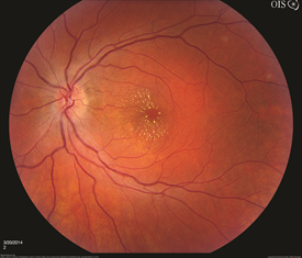 Figure 3. This image was originally published in the ASRS Retina Image Bank. Jason S. Calhoun, Mayo Clinic Jacksonville, Florida. Bilateral Macular Star. Retina Image Bank 2014; Image 15780. © the American Society of Retina Specialists.