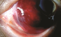 Figure 2. Chemosis or swelling of the conjunctiva with sub-conjunctival hemorrhage. Jason S. Calhoun, Retina Image Bank, 2013; Image 7720. © American Society of Retina Specialists.