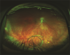 Figure 1. Dislocated intraocular lens in vitreous cavity. Photo courtesy of Larry Halperin, MD
