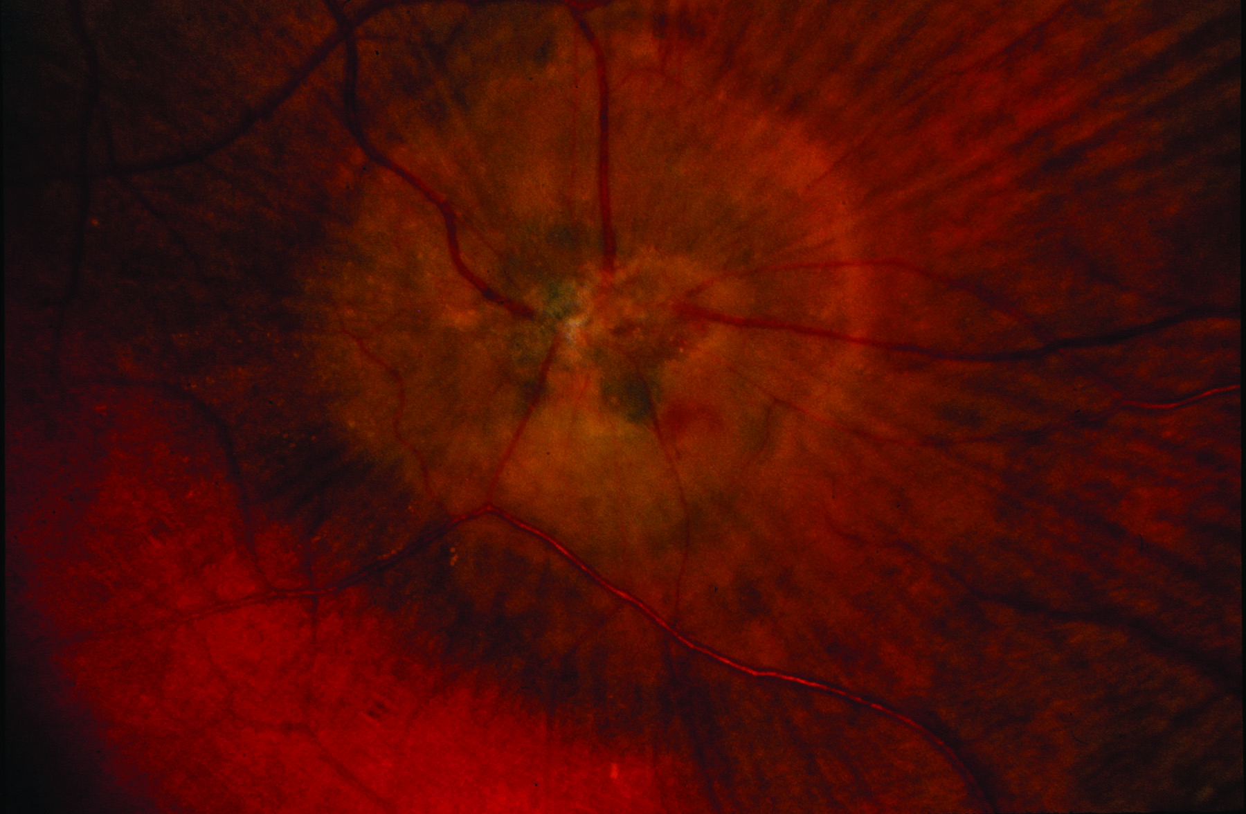 Figure 2. Macular scarring, retinal hemorrhages (bleeds), crystals and abnormal blood vessels characteristic of JFT Type 2. Image courtesy of the ASRS Retina Image Bank, contributed by David Callanan, MD, Texas Retina Associates, 2014. Copyright American Society of Retina Specialists 2016.