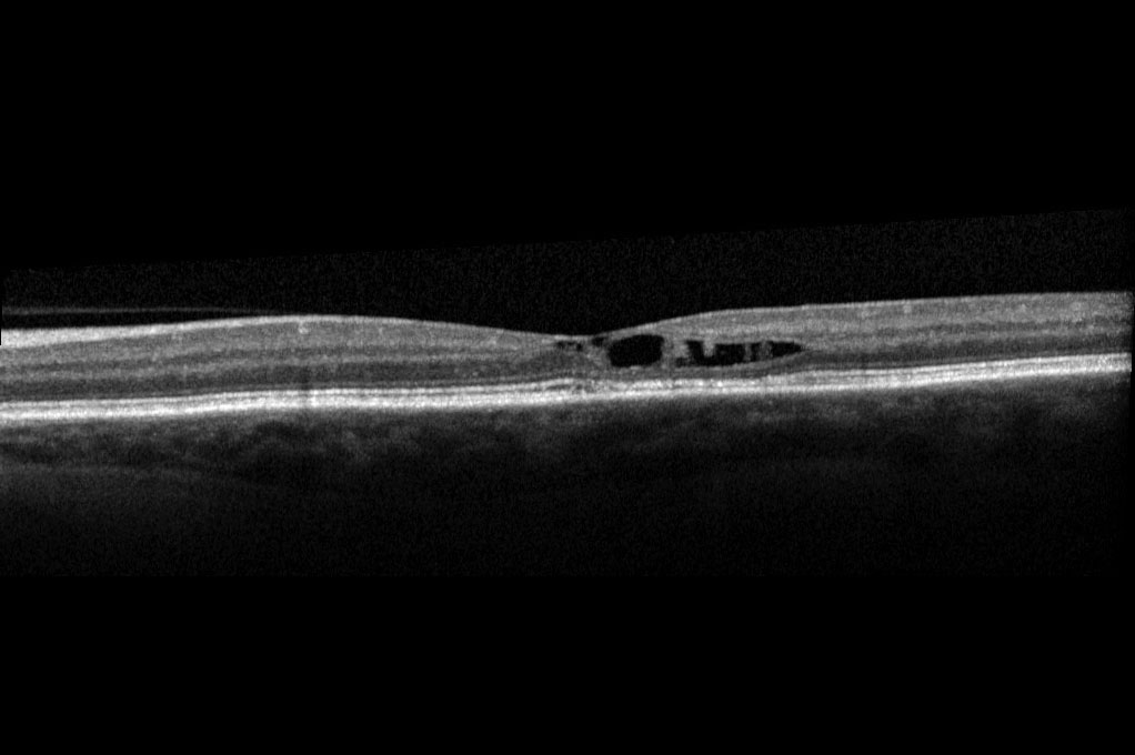 Figure 3. OCT shows intraretinal cleft in temporal macula typical of juxtafoveal telangiectasia. Image courtesy of John Thompson, MD 2016