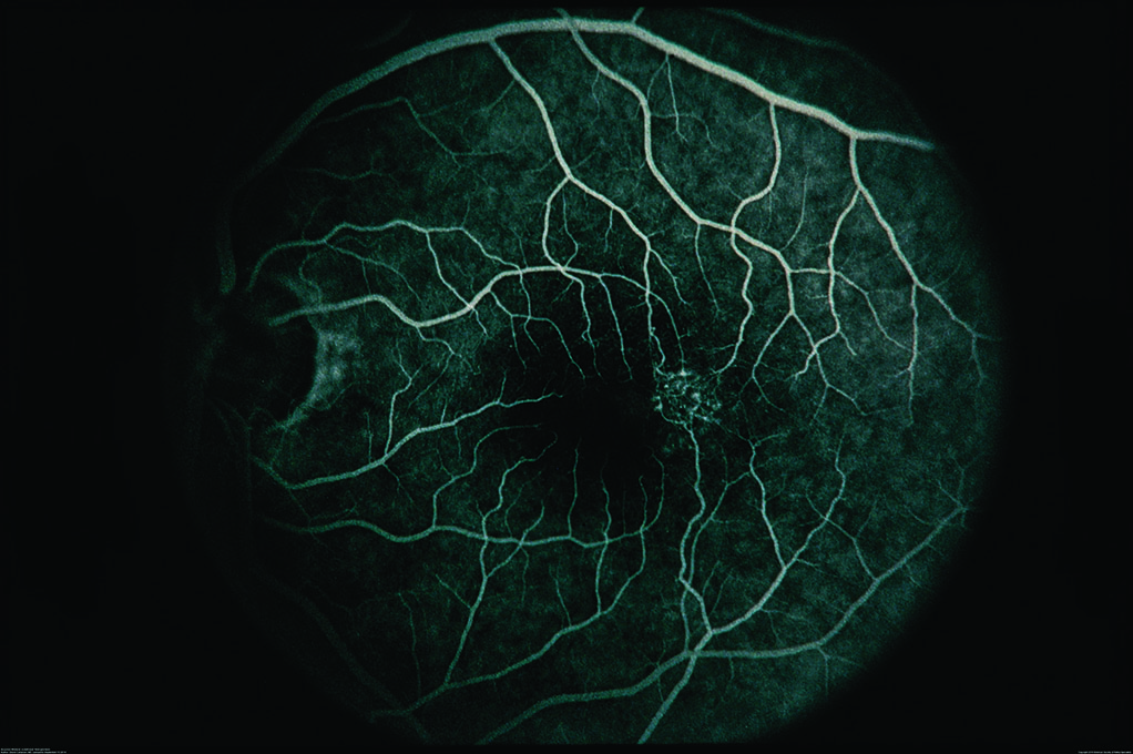 Figure 4. Fluorescein angiography of JFT Type 2 showing abnormal blood vessels in macula. Image courtesy of the ASRS Retina Image Bank, contributed by David Callanan, MD, Texas Retina Associates, 2014. Copyright American Society of Retina Specialists 2016