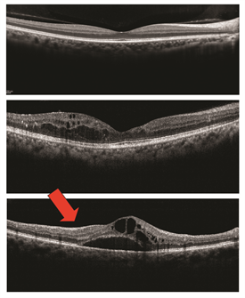 Figure 2. Optical Coherence Tomography and Macular Edema (Images courtesy of the ASRS Retina Image Bank, contributed by Dr. Suber Huang) OCT is a useful test to study macular edema (ME). • The top image is normal. Note the even layers and gently sloping dip of the macula called the fovea. This eye has excellent vision. • The middle OCT has ME, black-appearing cysts (arrows) which threaten the normal fovea. This eye also has good vision. • The bottom OCT shows ME involving the macula. Because ME involves the macular center (the fovea), vision is poor (large red arrow).
