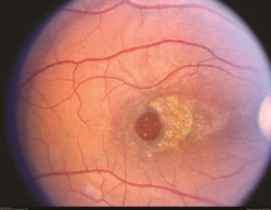 This image was originally published in the ASRS Retina Image Bank. Eric A. Postel, MD, Duke Eye Center. Traumatic Macular Hole. Retina Image Bank 2012; Image 2858. © the American Society of Retina Specialists.