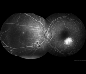 Figure 2. John S. King, MD. Presumed Ocular Histoplasmosis Syndrome. Retina Image Bank 2012; Image 421.© the American Society of Retina Specialists.