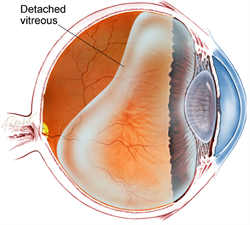 Figure 1. Diagram of the vitreous cavity during posterior vitreous detachment.
