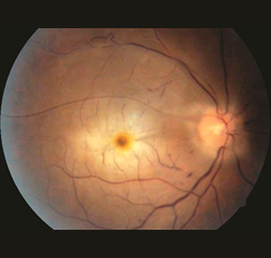 Figure 1. Central retinal vein occlusion (CRAO) with cherry red spot. Mehul A. Shah, MD. Retina Image Bank 2014; Image 19815. ©American Society of Retina Specialists.