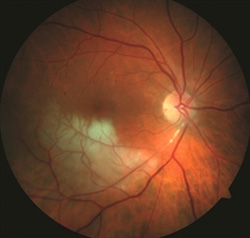 Figure 2. Branch retinal vein occlusion (BRAO) showing retinal whitening in the area of blockage. John S. King, MD. Retina Image Bank 2014; Image 18552. ©American Society of Retina Specialists.