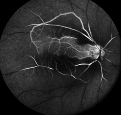 Figure 3. Fluorescein angiogram of CRAO showing sparing of the cilioretinal artery. Courtney Crawford, MD. Retina Image Bank 2017; Image 26792. ©American Society of Retina Specialists.