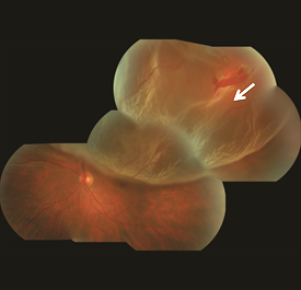 Superior macula-involving retinal detachment with a retinal tear identified with arrow.
