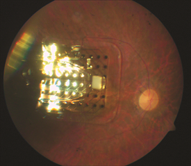 Figure 1. Retinal Prosthesis Image courtesy of University of Southern California