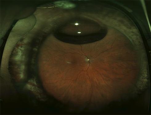 Figure 1. A wide-angle image of the retina following successful retinal detachment surgery by vitrectomy, scleral buckle, laser, and a small gas bubble. Image courtesy of the ©ASRS Retina Image Bank, contributed by Sharon Fekrat, MD, FACS. Image 3402.