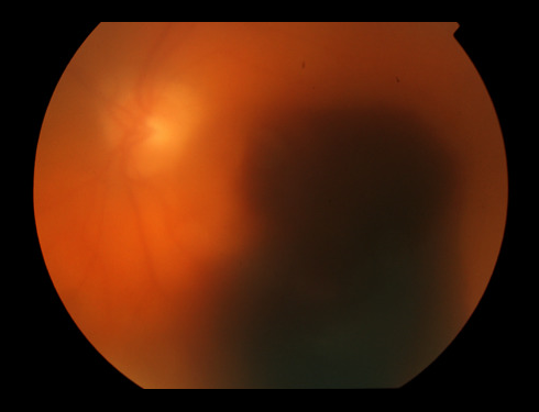 Figure 2. Vitreous hemorrhage, pre-retinal, and sub-retinal hemorrhages block vision and are indications for vitrectomy. When blood is cleared by surgery, vision will improve, but improvement is limited by the underlying health of the retina. Image courtesy of the ©ASRS Retina Image Bank, contributed by contributed by Thomas Ciulla, MD, MBA. Image 18973.