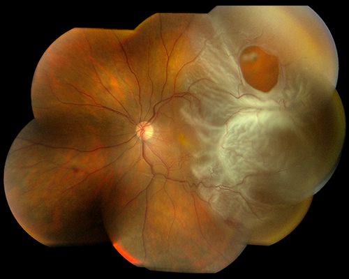 Figure 3a. Vitreous fluid flows through a retinal tear to cause a partial retinal detachment involving the macula. The optic nerve and nasal retina, or portion of the retina closest to the nose, are normal and uninvolved. Vitrectomy surgery is indicated to restore vision. Image courtesy of the ©ASRS Retina Image Bank, contributed by Brandon Busbee, MD. Image 2939.