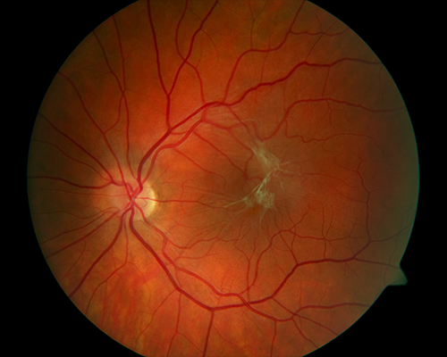 Figure 3b. An epiretinal membrane wrinkles the surface of the retina and blocks the macular photoreceptors (light-sensing cells at the center of the retina). This causes blurry and distorted vision. Vitrectomy and retinal membrane removal allow the retina to resume its normal shape and improve vision. Image courtesy of the ©ASRS Retina Image Bank, contributed by Sharon Fekrat, MD, FACS. Image 1863.