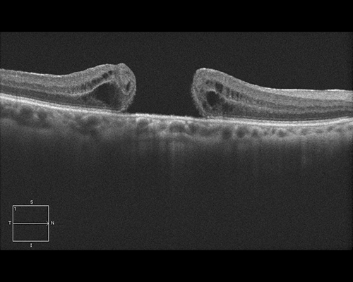 "Figure 3c. A full-thickness macular hole is shown using enhanced-depth imaging optical coherence tomography (EDI-OCT). The macula is pulled apart by traction on the surface of the retina. The dark areas represent swelling (retinal edema) from tissue damage. Vitrectomy surgery removes this traction and allows the retina to slide together, closing the gap and restoring the ""hole"" in the patient's vision. Image courtesy of the ©ASRS Retina Image Bank, contributed by Mr. Jason Calhoun. Image 7267."