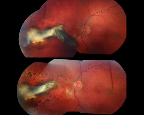 Figure 3f. A fragment of metal (upper photo) punctures the eye and impales (pierces) the retina near the optic nerve. Vitrectomy surgery was performed to remove the intraocular (in-the-eye) foreign body and laser was placed to prevent retinal detachment (black spots surrounding the white scar in lower photo). Image courtesy of the ©ASRS Retina Image Bank, contributed by Ahmad Tarabishy, MD. Image 24834.