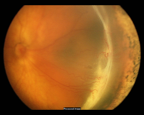 Figure 3g. Traction retinal detachment involving the macula in retinopathy of prematurity (ROP) (Stage 4b ROP). Contracture of abnormal blood vessels forms an elevated ridge of scar tissue in an infant with severe prematurity. Image courtesy of ©ASRS Retina Image Bank, contributed by Audina Berrocal, MD. Image 1198.