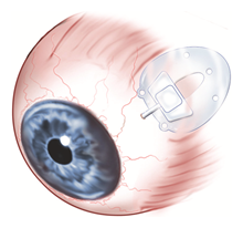 A pars plana seton (valve) inserted into the pars plana to control the intraocular pressure in an eye with glaucoma.